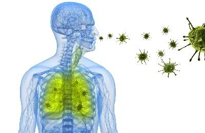 Внутрибольничная пневмония: симптомы, лечение, сроки, классификация, сроки выздоровления