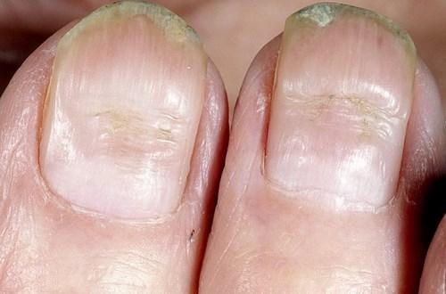 Линии Бо Рейли на ногтях, борозды на ногтевой пластине: причины, симптомы, фото, лечение