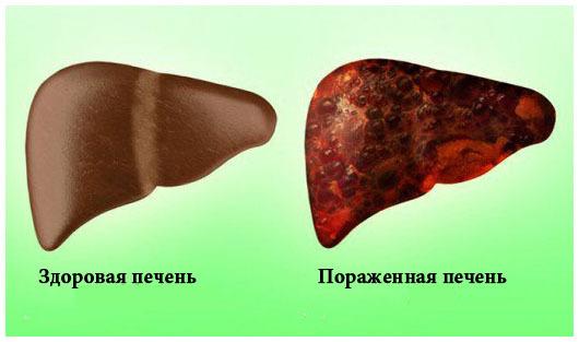 Токсический гепатит печени: что это такое, причины, симптомы, диагностика, лечение