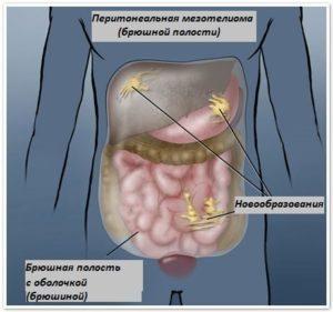 Мезотелиома брюшины: что это, симптомы, гистология, прогноз