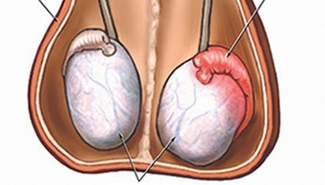 Акинозооспермия – причины, симптомы, методы лечения и вероятность зачатия | ОкейДок