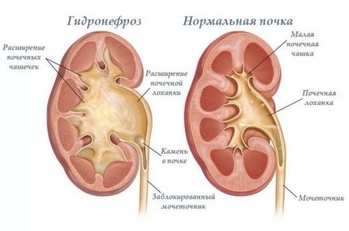Опущение почки: симптомы, причины, лечение, упражнения, последствия нефроптоза