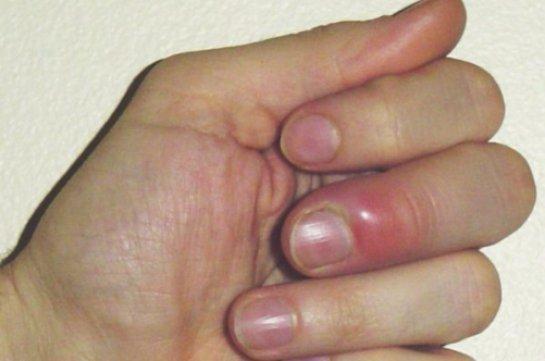Гноится заусенец на пальце руки: чем лечить, чем обрабатывать в домашних условиях