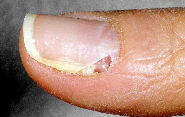 Фото симптомы лечение энтеровирусных инфекций | RuMedKit.com | 401x634