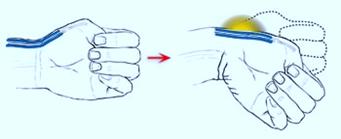Болезнь де Кервена большого пальца кисти руки: симптомы, лечение, операция