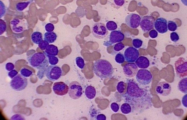 Повышены лимфоциты у ребенка в крови: причины лимфоцитоза, что это значит