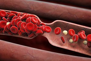 Хронический венозный отек: причины, симптомы, диагностика, лечение, профилактика