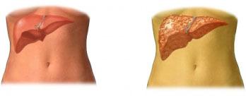 Хроническая печеночная недостаточность: симптомы и лечение
