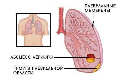 Анализ крови на стерильность: что показывает бакпосев, как правильно называется