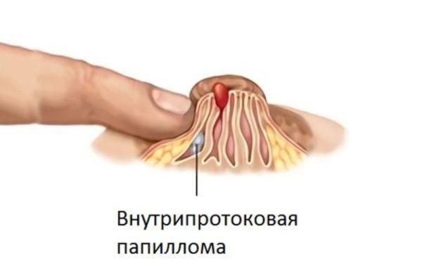 Внутрипротоковая папиллома молочной железы: причины, симптомы, диагностика, лечение