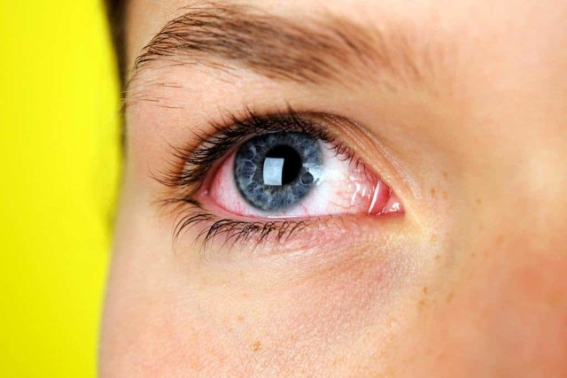 Покраснели белки глаз у ребенка, у взрослого: причины, что делать