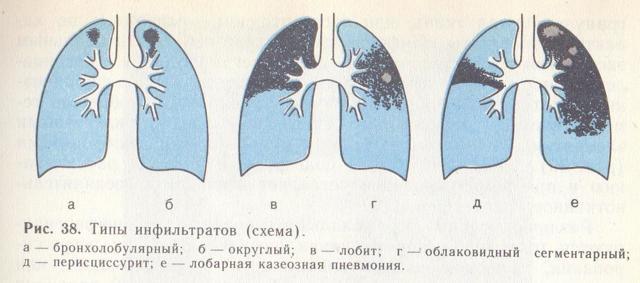 Кавернозный туберкулез легких: причины, симптомы, рентген, прогноз, заразен или нет