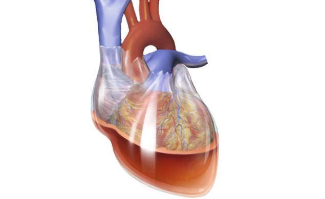 Тампонада сердца: что это такое, симптомы, лечение, неотложная помощь