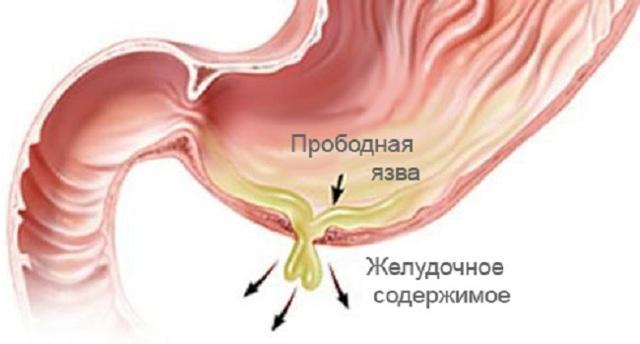 Прободная язва желудка: симптомы, лечение, прогноз и неотложная помощь