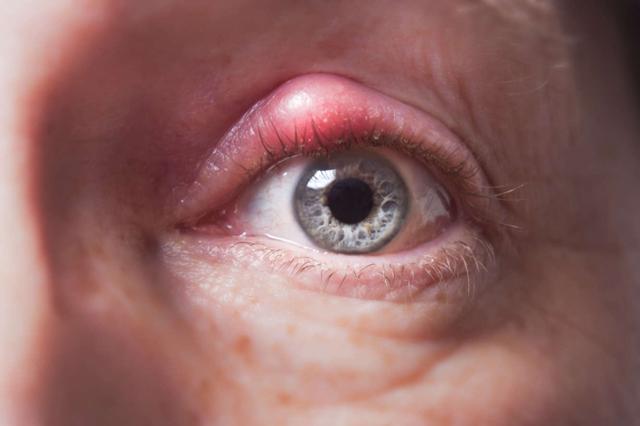 Чешется глаз, веко, как будто что-то попало: что делать, чем снять зуд глаз, капли