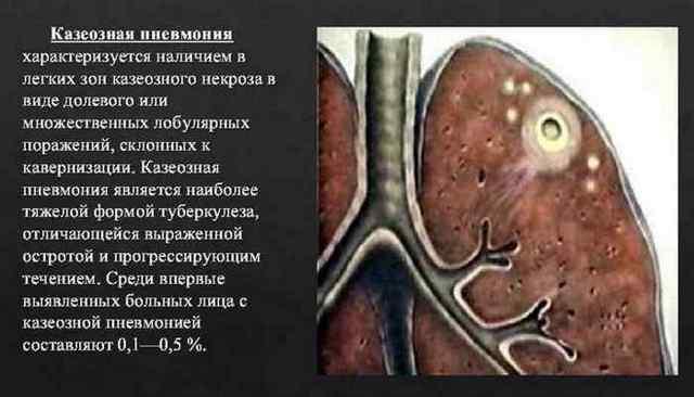 Казеозная пневмония при туберкулезе: что это такое, симптомы, рентген, лечение