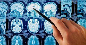 Киста головного мозга: причины, симптомы, лечение | ОкейДок