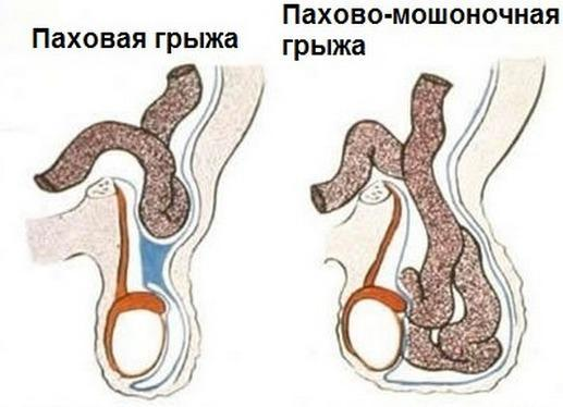 Азооспермия – лечение, причины, беременность при азооспермии