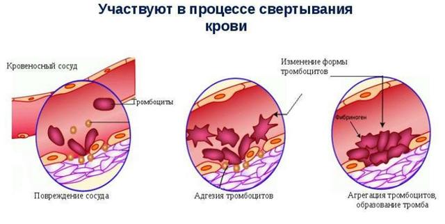Понижены тромбоциты в крови у взрослых женщин, мужчин: причины, лечение в домашних условиях