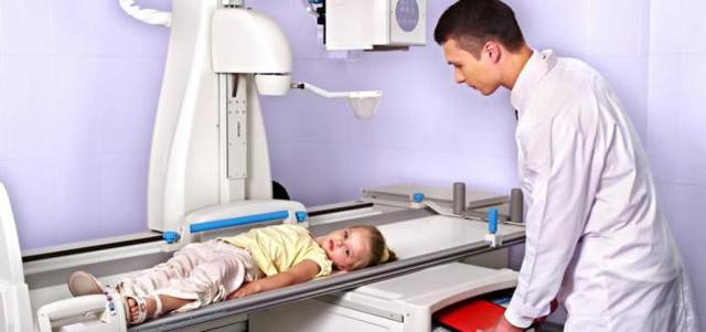 Болезнь Блаунта у детей: причины, рентген признаки, симптомы, лечение, профилактика, риски