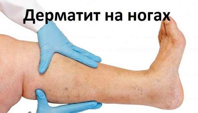 Варикозный дерматит нижних конечностей: симптомы, фото, лечение, мази