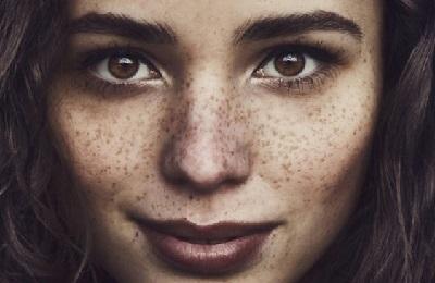 Как избавиться от веснушек: кремы и средства от веснушек на лице