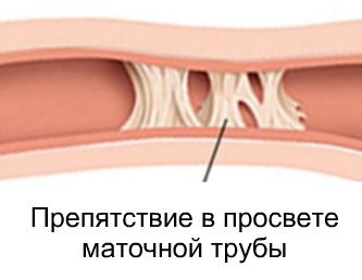 Непроходимость маточных фаллопиевых труб: симптомы, признаки, лечение, беременность