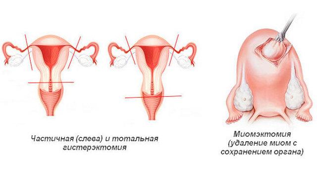 Миома шейки матки: симптомы и лечение при беременности, при климаксе