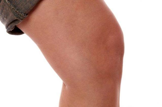 Синовит коленного сустава: симптомы и лечение, народные средства при синовите