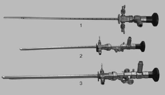 Эндоскопия мочевых путей: уретроскопия, цистоскопия, уретероскопия, пиелоскопия