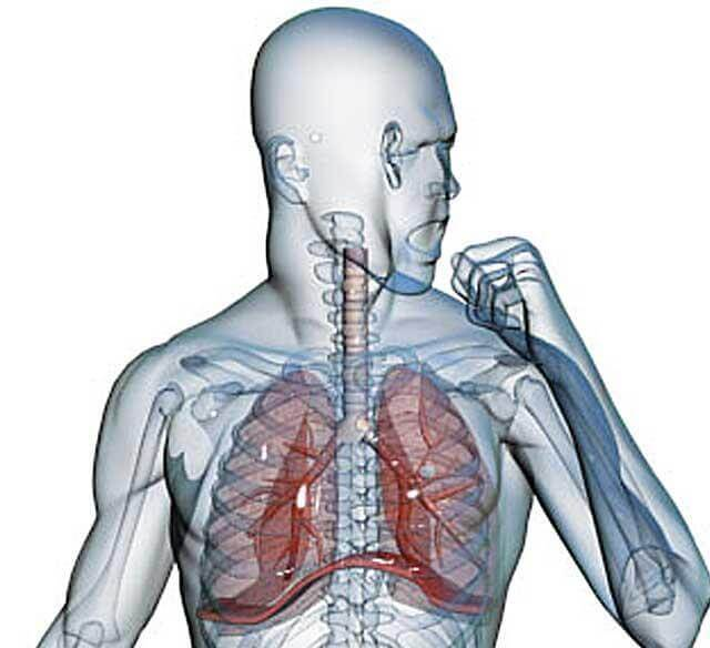 Геморрагическая пневмония при гриппе: что это такое, причины, симптомы, диагностика, лечение, исход
