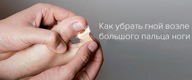 При ногтевой панариции можно пользоваться эхтиоловой мазью?