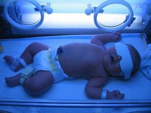 Гемолитическая желтуха: причины, биохимия, механизм развития у новорожденных