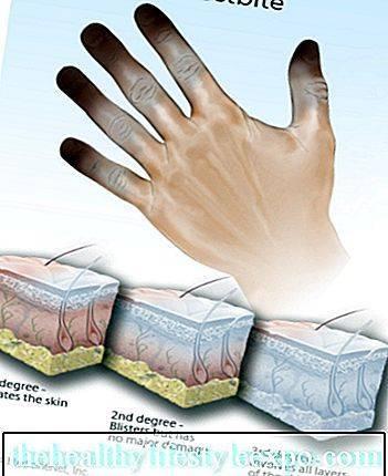 Особенности получения холодовых травм, разница между обморожением и гипотермией, первая помощь, чем опасны травмы холодом?