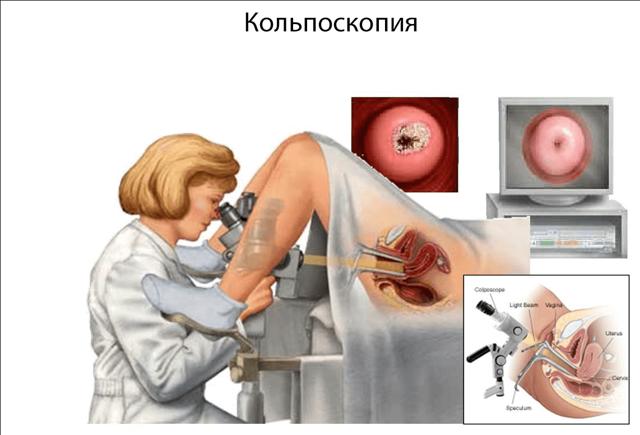 Кольпоскопия в гинекологии: что это за процедура, как и для чего ее делают