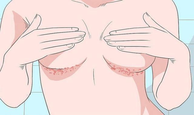 Опрелости, покраснение под грудью, грудными железами: причины, симптомы, лечение