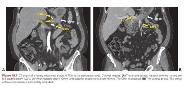 Протоковая аденокарцинома поджелудочной железы: что это, прогноз после операции, стадии