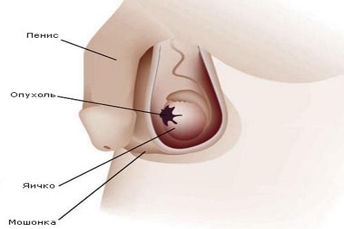 Опухоли мошонки: причины, симптомы и лечение опухоли яичка у мужчин