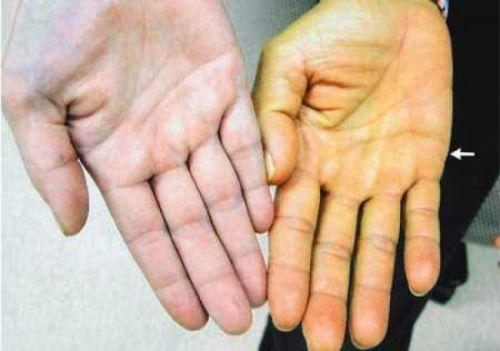 Чем опасен синдром Жильбера: что это такое, как сдавать анализ на синдром Жильбера