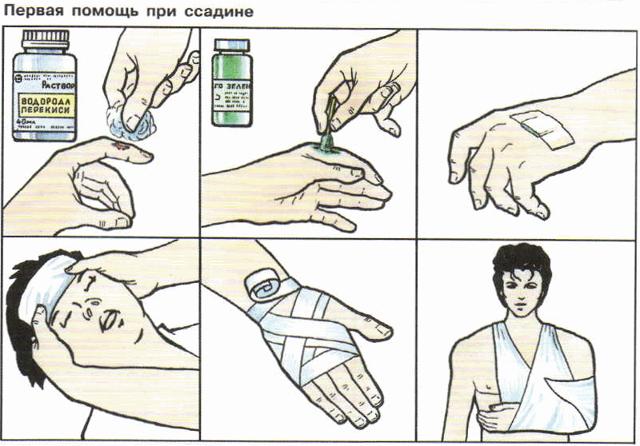 Ссадины и потертости: первая помощь, средства из индивидуальной аптечки, лекарственные растения