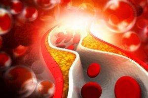 Понижены моноциты у ребенка, у взрослого в крови: причины моноцитопении, что это значит