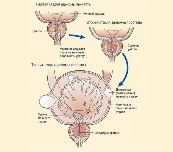 Гемоспермия: причины лечение, алгоритм обследования, симптомы у мужчин