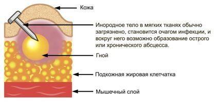 Инородное тело