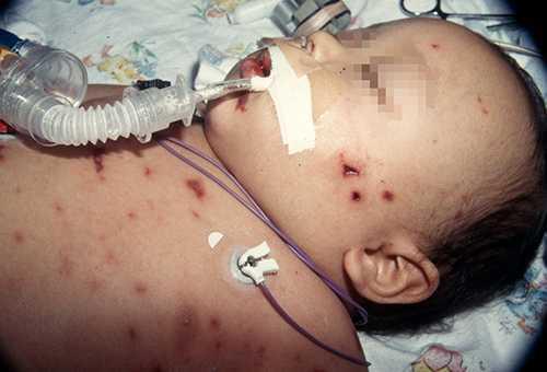 Чем опасна пневмококковая инфекция у детей, каковы ее причины, варианты течения и лечение, каковы методы профилактики