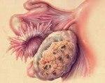 Дисгерминома яичника: причины, симптомы, гистология, лечение, прогноз