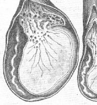 Как определить орхит и препятствовать его развитию?