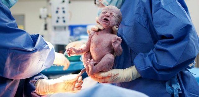 Беременность и роды после кесарева сечения через 3, 6 месяцев, 2 года: через сколько можно