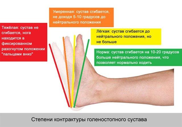 Контрактура голеностопного сустава: что это такое, симптомы, лечение, разработка, упражнения