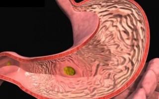Эрозивный гастрит: симптомы и лечение, диета при эрозивном гастрите