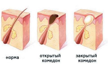 Акне – причины прыщей акне, стадии развития угревой сыпи, методы лечения акне.